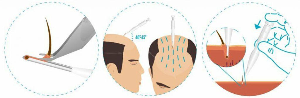 DHI-hair-transplantation-1024×336