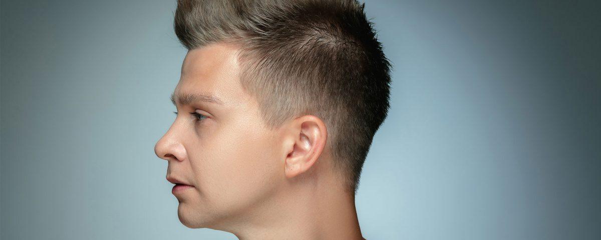 Does hair look natural after hair transplantation?