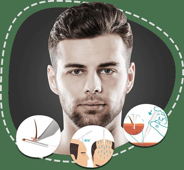 treatments-dhi